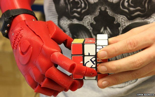 Open Bionics robotic hand for amputees